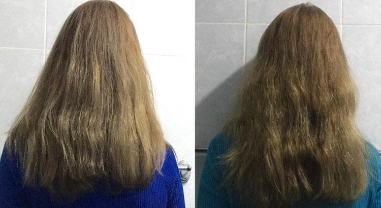 Маска для волос с димексидом для роста