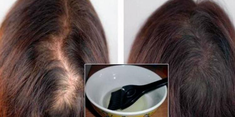 Касторовое масло для волос применение в домашних условиях