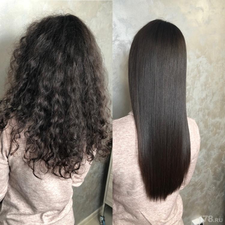 Биксипластия для волос что это