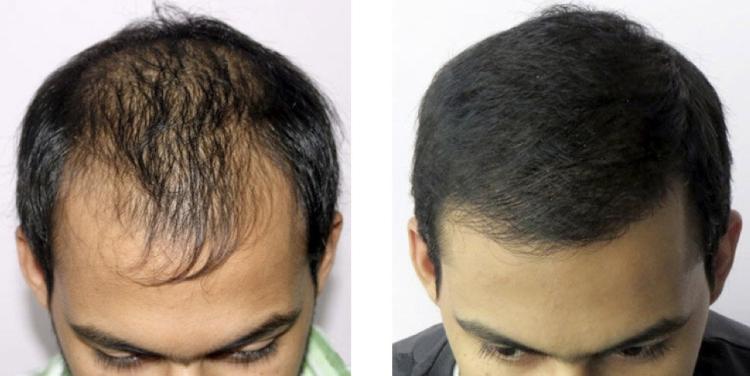 Восстановление волос по методу Джека
