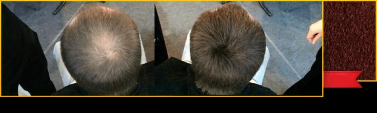 Топ 5 лучшие загустители волос
