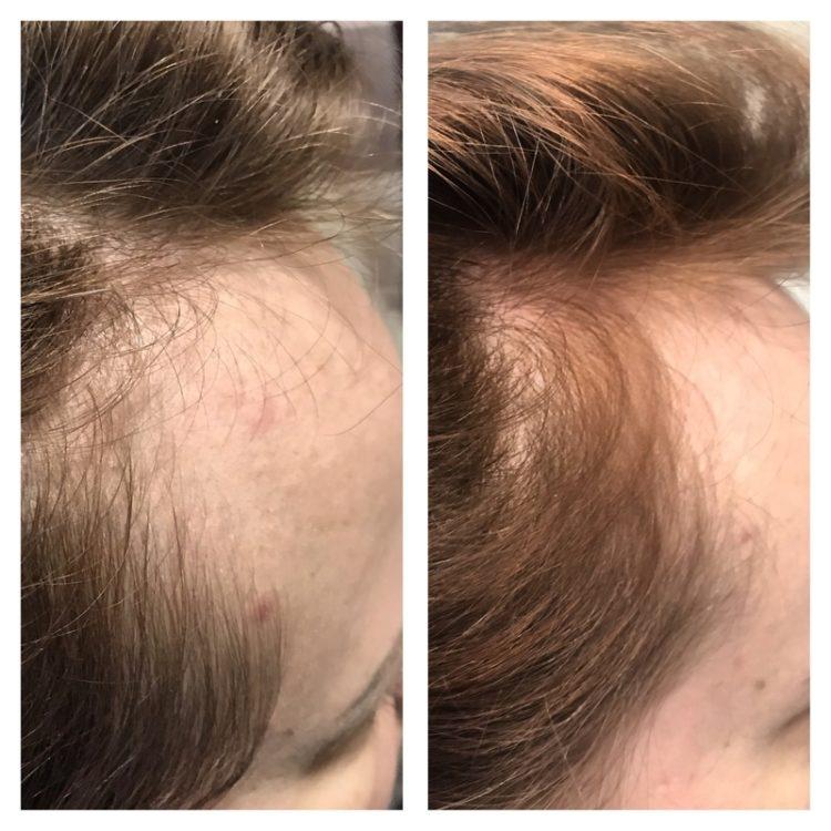 Всё о мезотерапии волос